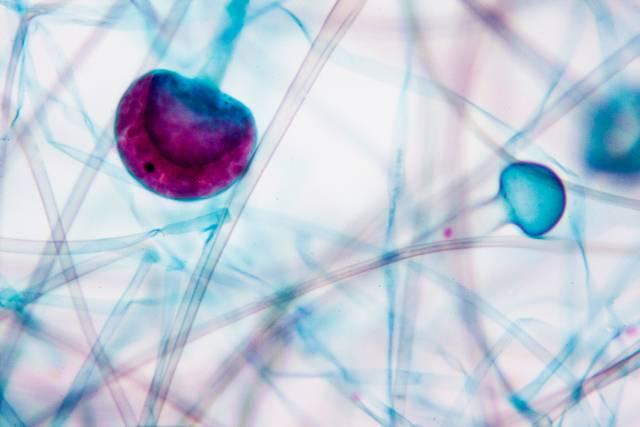 vírusok a felületeken